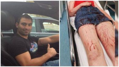 """Photo of Vještak: """"Daruvarac je bio uračunjiv dok je tukao djevojku. Znao je što radi"""""""